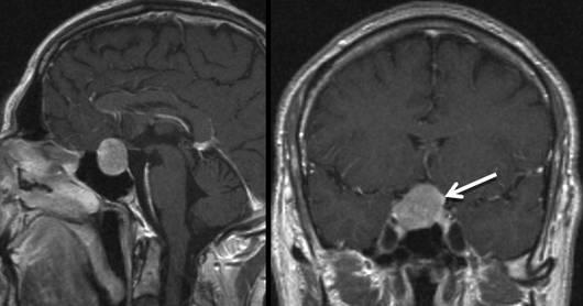 Klinik und Poliklinik fuer Neurochirurgie: Hormoninaktive ...