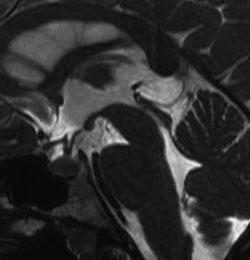 pelottierung des myelons hws