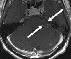 krebs tumor gesicht